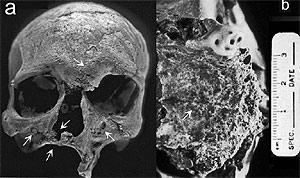 Imagen del esqueleto encontrado. (Foto: 'PLoS One')