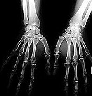 Una radiografía de manos. (Foto: ELMUNDO.es)