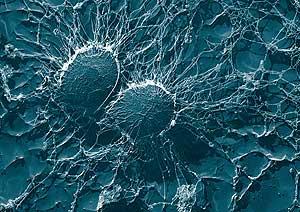 Imagen del 'Staphylococcus aureus'. (Foto: Eric Erbe, Christopher Pooley)