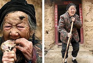 La anciana con un cuerno de seis centímetros. (Foto: Efe)