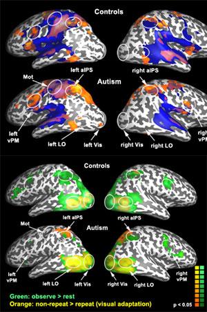 Imágenes del cerebro tomadas durante el experimento. (Foto: 'Neuron')