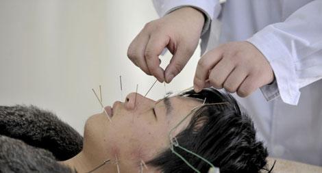 Un paciente recibe un tratamiento de acupuntura en Shenyang.| Efe