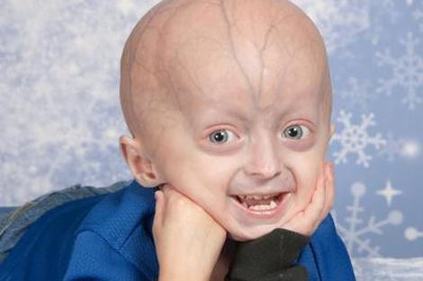 Un niño de cuatro años con progeria. | Fundación para la Investigación de la Progeria