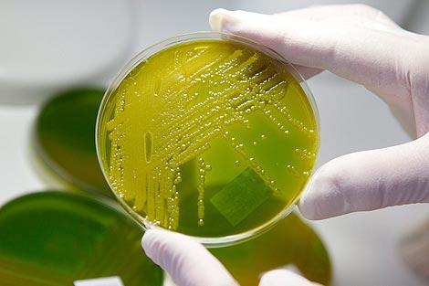 Muestra de la bacteria en un laboratorio. | Efe
