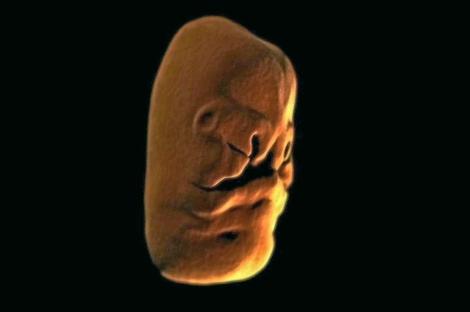 Imagen del rostro de un feto a partir de la quinta semana de embarazo. | Foto: BBC