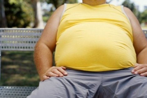 Una persona obesa. | The Lancet