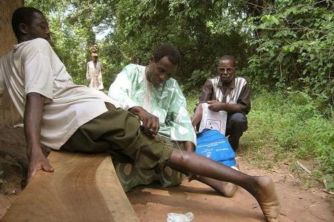 Un sanitario extrae el gusano de la pierna de un afectado en Níger.| CDC