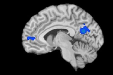 Las zonas azules son las que se alteran con la meditación.| Yale