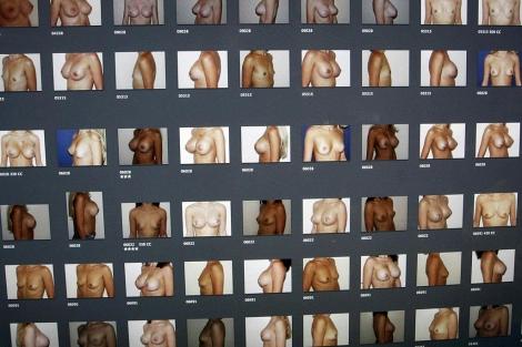 Imágenes de pacientes con implantes de mama de una clínica francesa. | Reuters