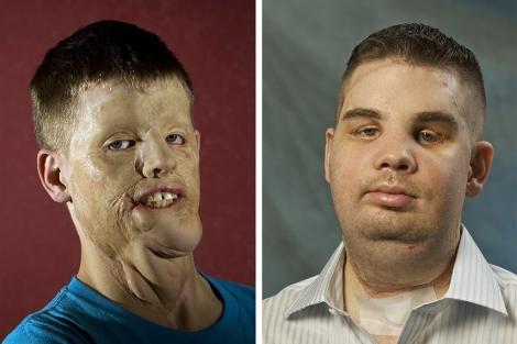Mitch Hunter, antes y después del trasplante. | Brigham and Women's Hospital