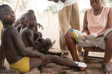 Afectados por dracunculiasis en Togo   Foto: CDC