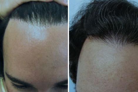Imágenes de antes y después de utilizar implantes de pelo de la pierna. | Sanusi Umar
