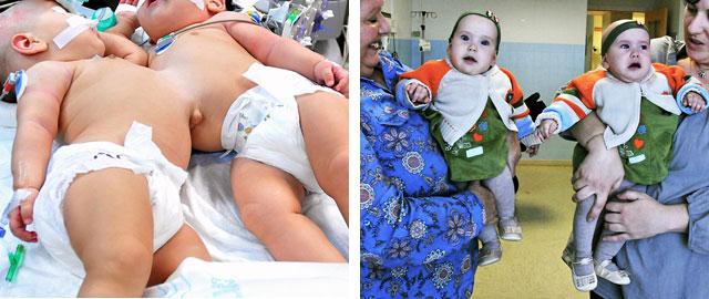 Marta y Núria, justo antes de someterse a la operación y días después, ya recuperadas.