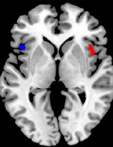 Diferencias en la circunvolución frontal inferior en un cerebro monolingüe (en rojo) y en un bilingüe (azul).   BRAINGLOT
