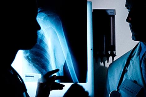 Médico mirando una radiografía. | El Mundo
