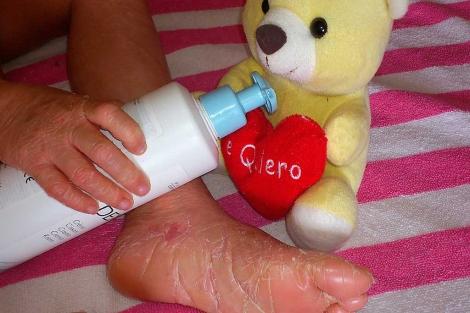 Niño afectado de ictiosis. | El Mundo