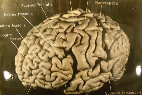 Una de las imágenes de Harvey divulgada por la revista 'Brain'.| EM