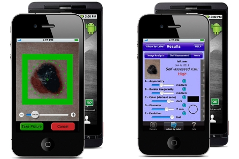 Una de las aplicaciones que promete un 'autodiagnóstico del cáncer de piel.| E.M.