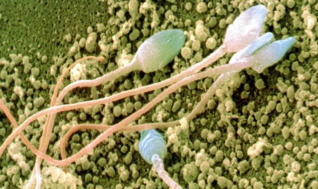 Espermatozoides humanos vistos bajo un microscopio.   Science Photo Library