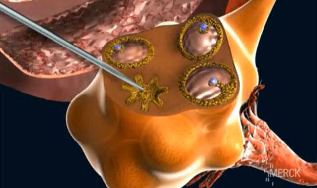 Punción ovárica para un tratamiento de fertilidad.