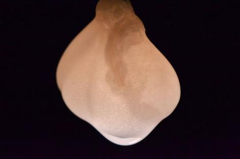 Detalle del riñón de laboratorio. | Nature