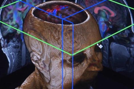 Fotograma de un documental sobre el cerebro.| EM