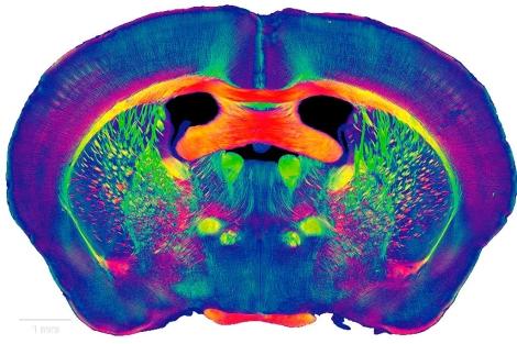 Corte transversal de un cerebro. | EM
