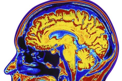 Las técnicas de imagen se utilizan para estudiar el cerebro y sus enfermedades.   El Mundo