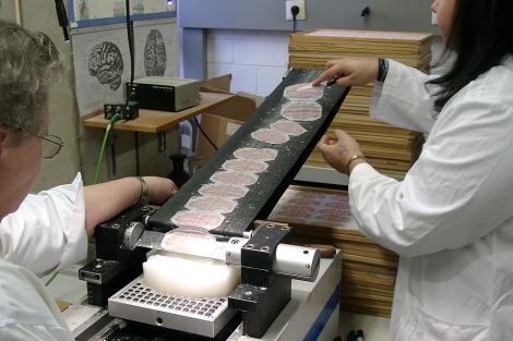 Los investigadores lonchearon un cerebro humano en 7.000 secciones.| Science