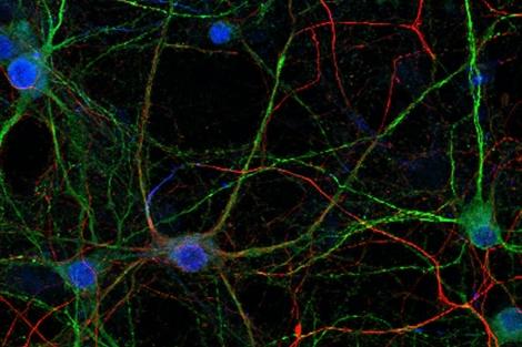 Neuronas del cerebro con el núcleo en azul, sus dendritas en verde y los axones en rojo.