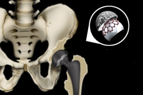 Vea el <a href=https://www.elmundo.es/elmundosalud/documentos/Vea el gráfico sobre lesiones osteoarticulares. | Gracia Pablos