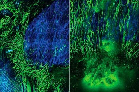 Vasos sanguíneos del tumor antes y después del antihipertensivo.| R. Jain