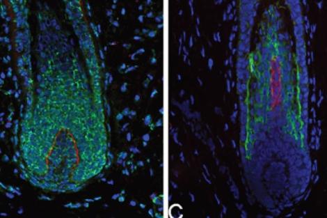 Detalle de la regeneración capilar progresiva. | PNAS