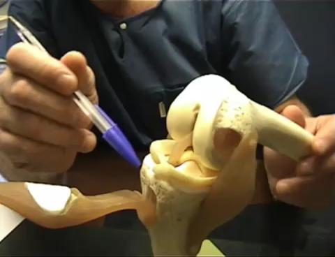 Precio operacion rodilla artrosis