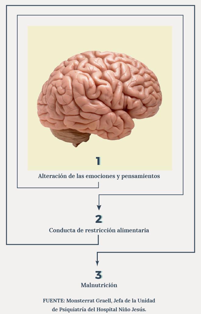 Cerebro gráfico