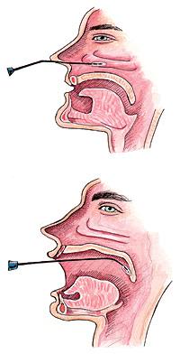 Desbloquear las vías nasales y uvulopalatofaringoplastia.