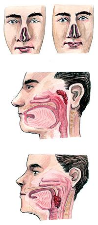 Tabique torcido, cavidad nasal taponada y exceso de tejido en la garganta.