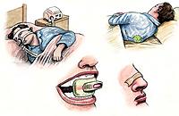 Otras soluciones: el CPAP, pelota de tenis, corrección oral y cinta nasal.