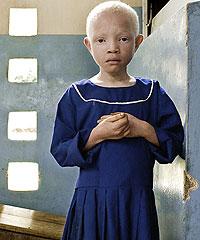 Una niña espera a ser atendida en uno de los 50 dispensarios para población albina con los que cuenta Tanzania. (Foto: BET-SABÈ RIBAS)