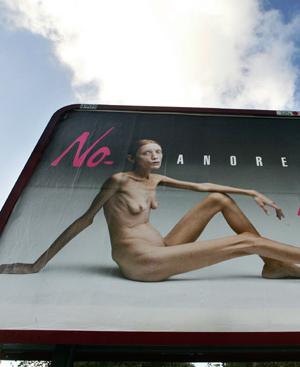 Imagen de la polémica campaña de Oliviero Toscani. FOTO: EFE.
