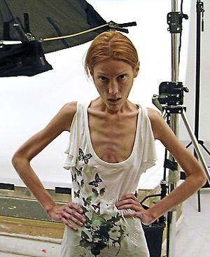 """La joven francesa protagonista de la campaña de """"Nolita"""", de Oliviero Toscani. FOTO: Blog de Isabelle ComediEnne"""