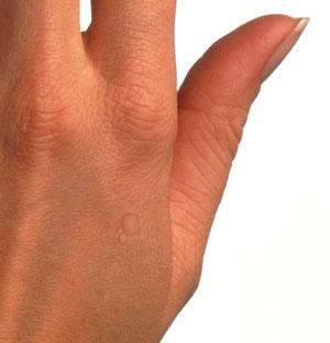 verrugas en los dedos en niños